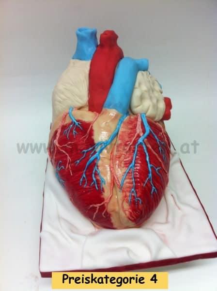 herz-anatomisch-20131121